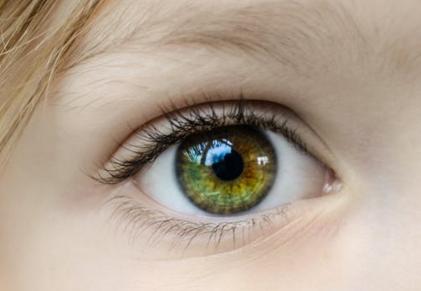 视力快速降低?警惕圆锥角膜